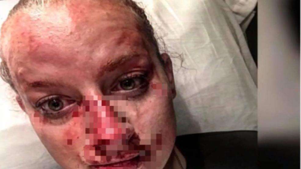Brooke County Sheriff Deputy's Fight Aftermath Goes Viral
